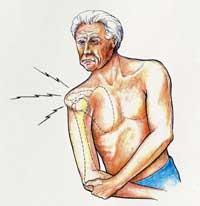 ...в результате этого происходит повреждение суставной сумки вследствие смещения поверхностей сустава.